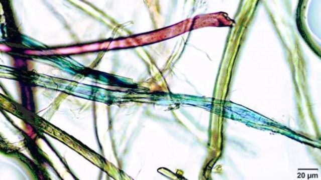 Partículas podem ser microscópicas. — Foto: MONIQUE RAAP/UNIVERSITY OF VICTORIA