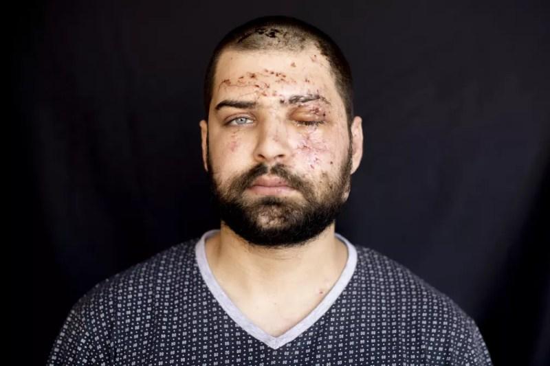 Hassan Nabha, 27, engenheiro de computação e comunicação, ferido em seu escritório durante explosão do dia 4 de agosto em Beirute, no Líbano — Foto: Hassan Ammar/AP