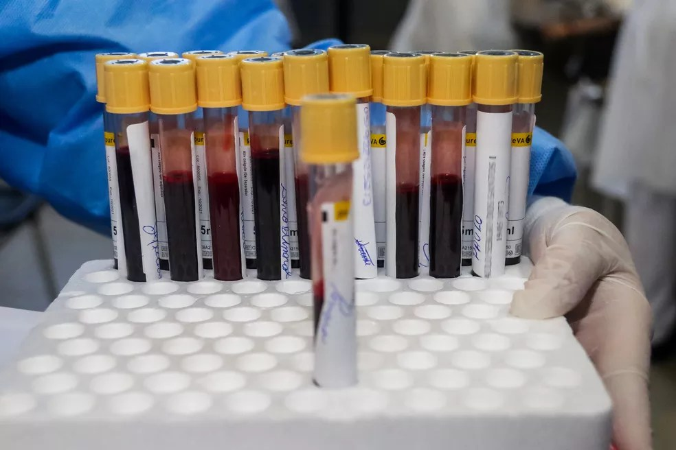 Tubos de exame de sangue para teste da Covid-19 no estado de São Paulo — Foto: Cadu Rolim/Estadão Conteúdo