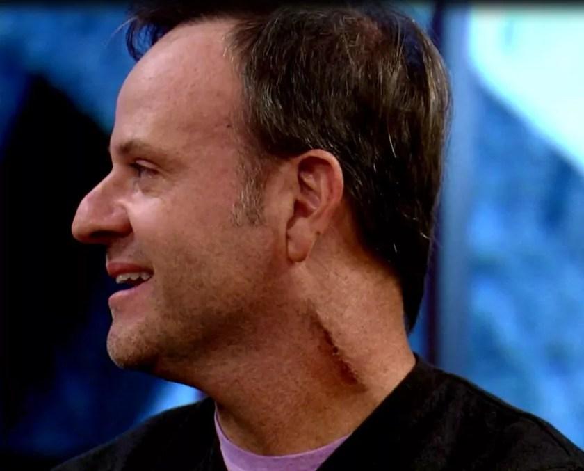 Rubens Barrichello exibe cicatriz no pescoço após cirurgia (Foto: TV Globo)