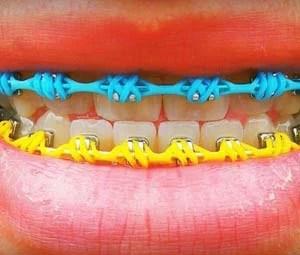 Jovens usam acessórios dentários de maneira irregular (Foto: Aparelhos Diferenciados/Divulgação/Facebook)