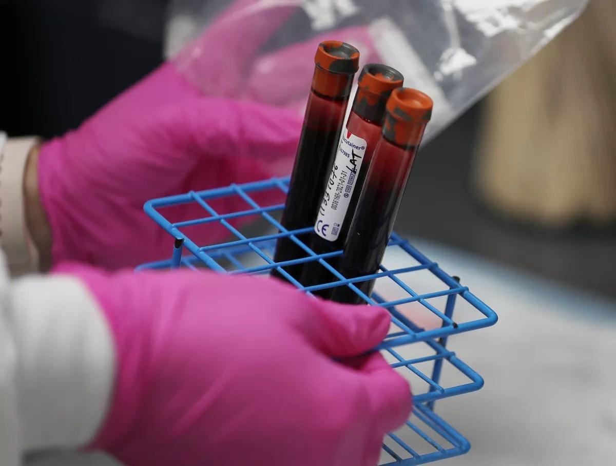 Novo estudo exclui ligação entre tipo de sangue e incidência de Covid |  Coronavírus