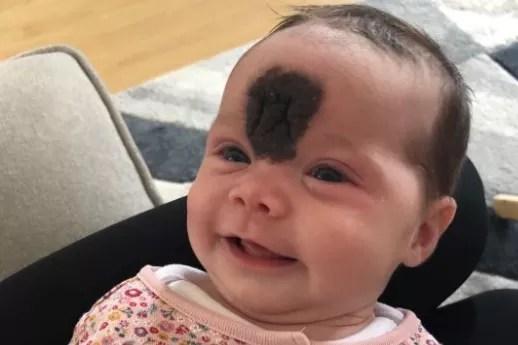A pequena Viena nasceu com uma grande mancha no rosto (Foto: Reprodução/GoFundMe/Celine Casey)