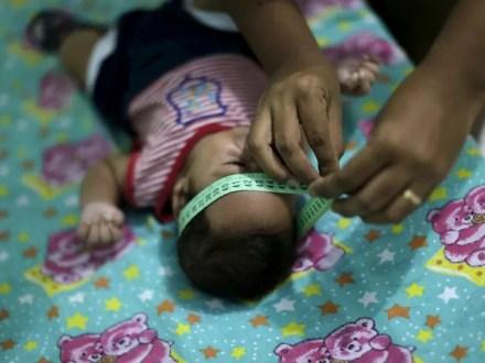 Diagnosticado com microcefalia, bebê Guilherme Soares Amorim, de 2 meses, tem a cabeça medida por sua mãe, Germana Soares, em sua casa em Ipojuca, em Pernambuco  (Foto: Reuters/Ueslei Marcelino)