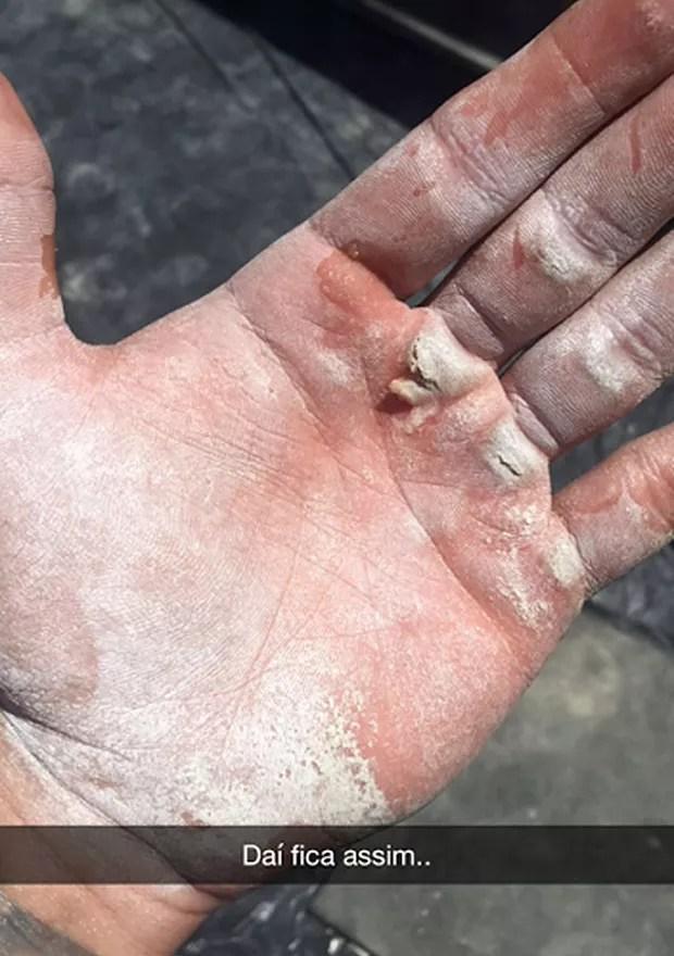 Mão de Lucas Lucco (Foto: Reprodução / Snapchat)