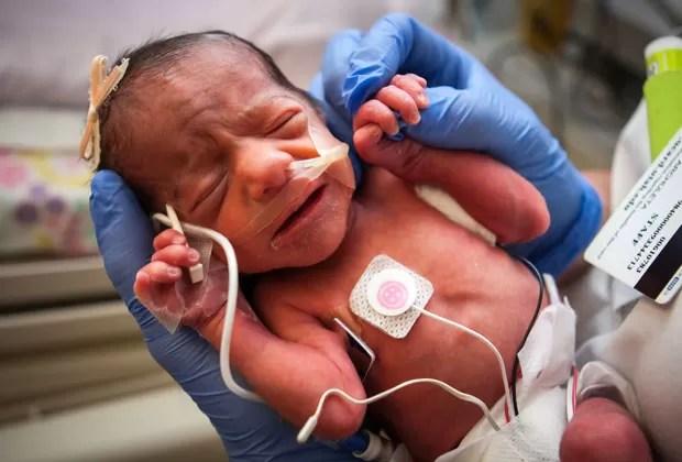 Crianças nasceram de 31,5 semanas; mãe estava internada desde o início de abril (Foto: Hospital da Universidade de Utah/AP)
