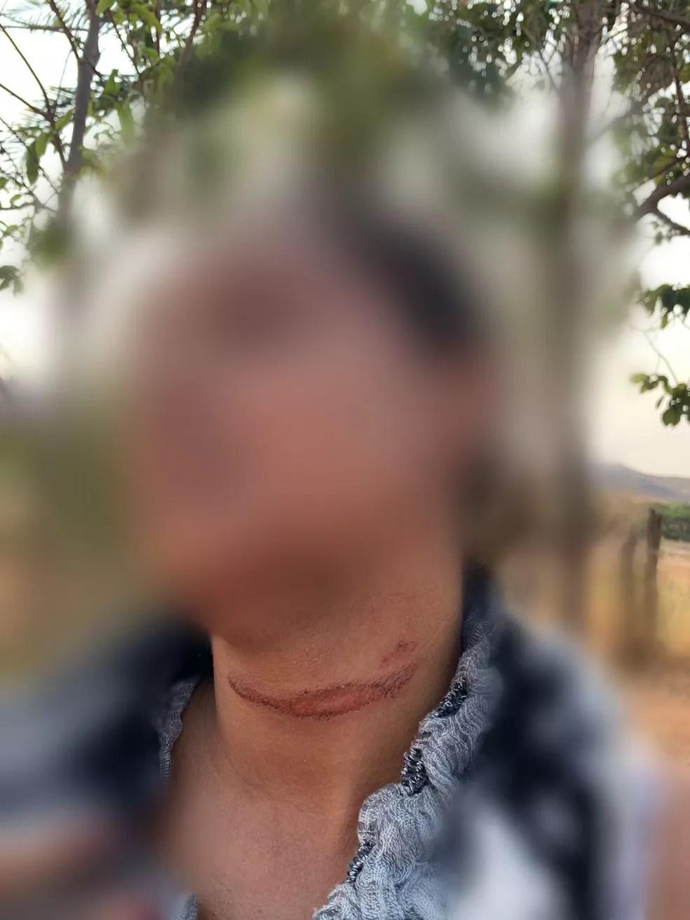 Ferimento no pescoço da esposa do vereador — Foto: Arquivo pessoal