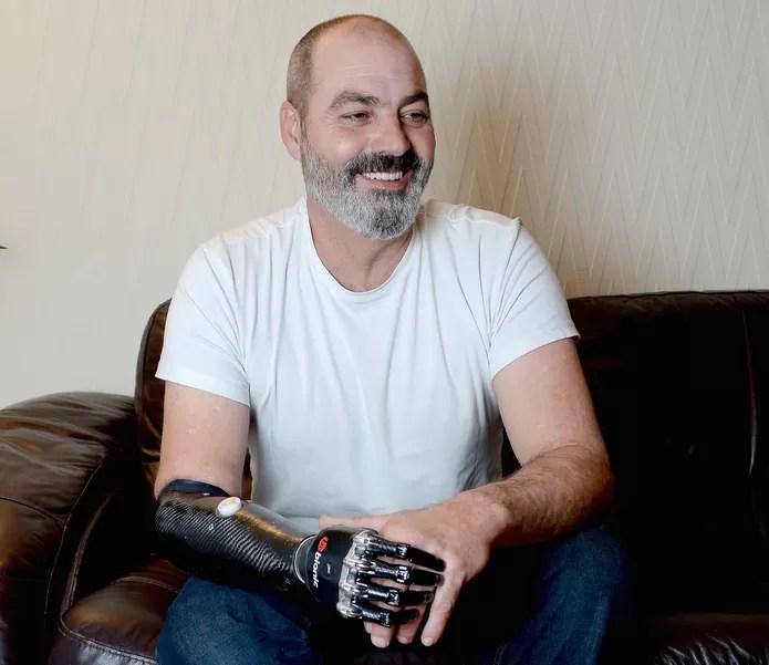 Homem com BeBionic, prótese de mão biônica (Foto: Reprodução/Cambridge News)