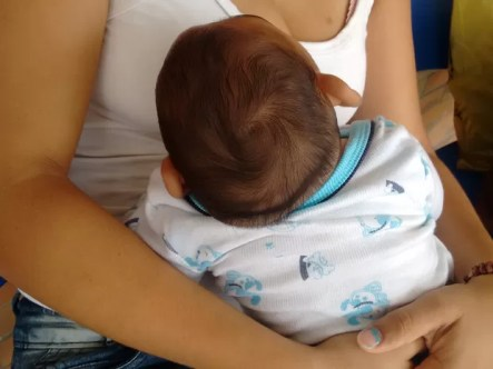 Resultado de imagem para Em PE, 450 crianças com microcefalia recebem benefício, do INSS