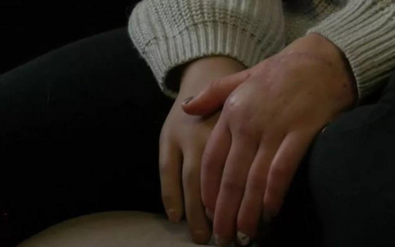 Os médicos conseguiram reimplantar a mão esquerda de Margarita Gracheva em uma operação que durou 10 horas — Foto: BBC