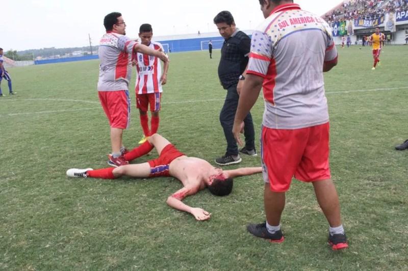 Jogador agredido Amazonas (Foto: Divulgação)
