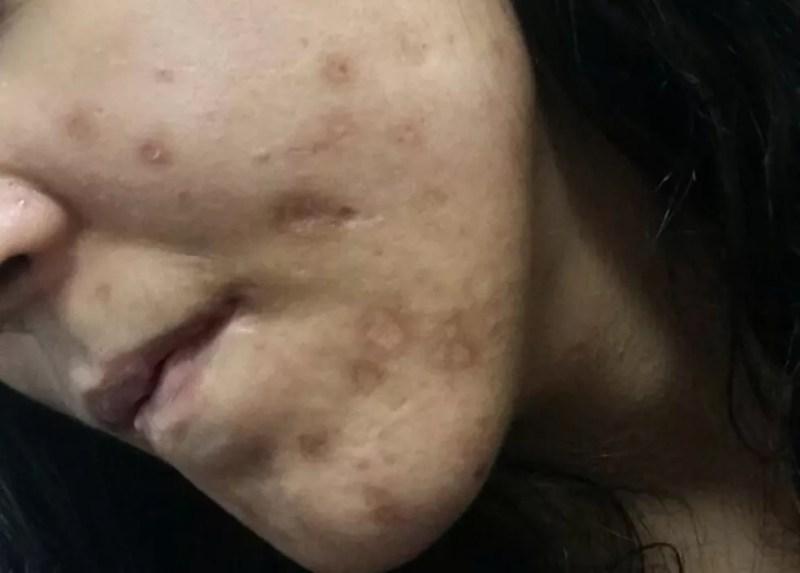 Vítima contou que pai apagava cigarros em seu rosto, em Mogi das Cruzes (Foto: Maiara Barbosa/G1)