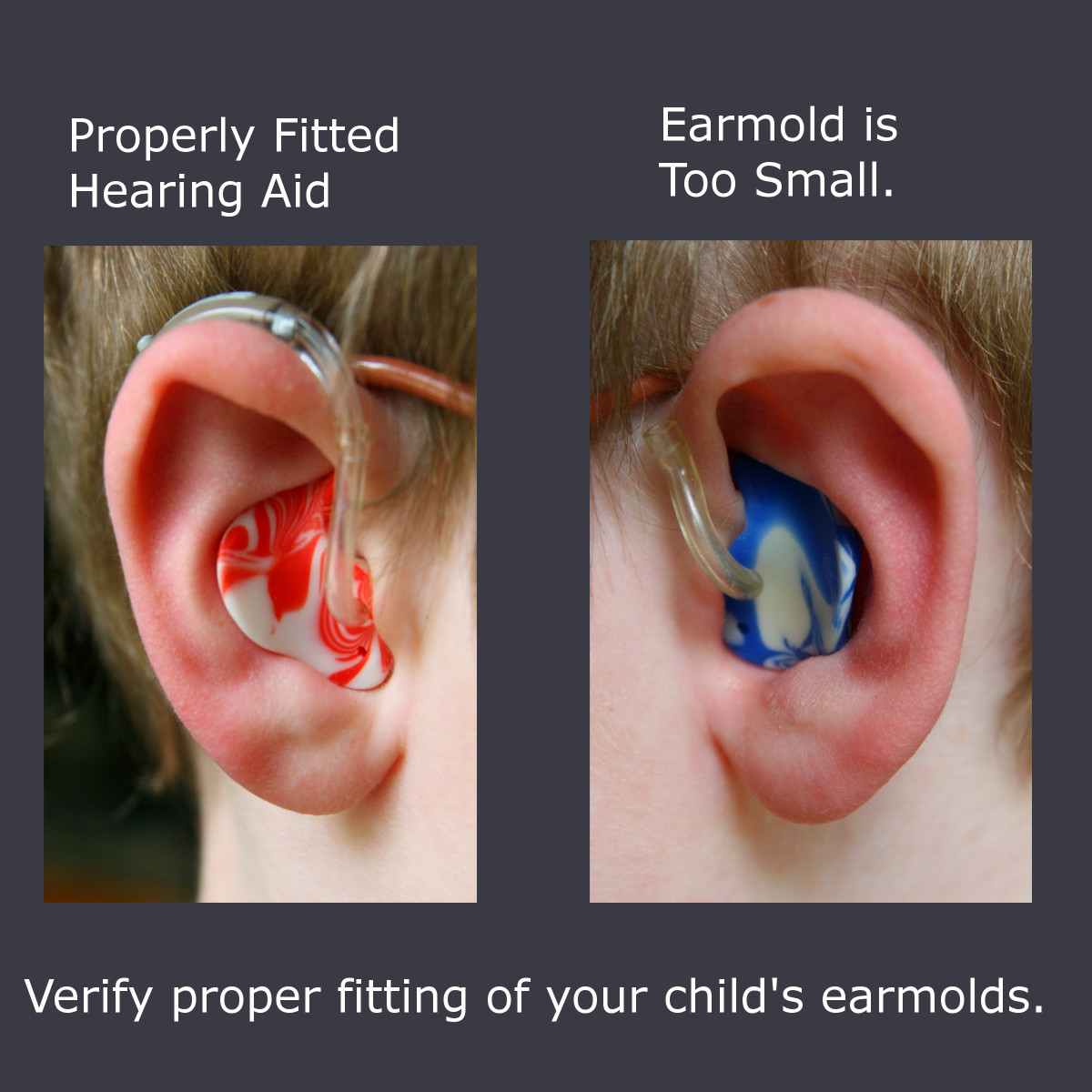 Make sure your child's hearing aids fit properly. The earmold on the left is properly fitted - the one on the right is too small and leaves a gap.