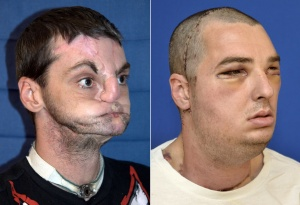 Richard Norris is seen before (L) and after (R) his face transplant surgery in this combination of undated handout photos released by the University of Maryland Medical Center. Surgeons from the University of Maryland Medical Center on March 27, 2012, detailed what they said was the world's most comprehensive face transplant, allowing the 37-year-old Virginia man to emerge from behind a mask 15 years after a gun accident that almost took his life. Norris of Hillsville, Virginia, was shot in the face in 1997 and lost his nose, lips and most movement in his mouth. Since that time, he has had multiple life-saving and reconstructive surgeries but none could repair him to the extent where he felt he could return to society. He wore a prosthetic nose and a mask even when entering hospital for the transplant. REUTERS/University of Maryland Medical Center/Handout