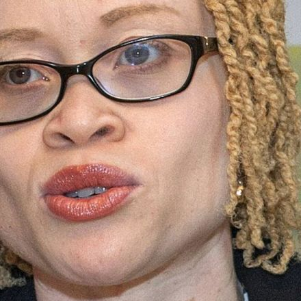People with albinism in Malawi face 'total extinction'