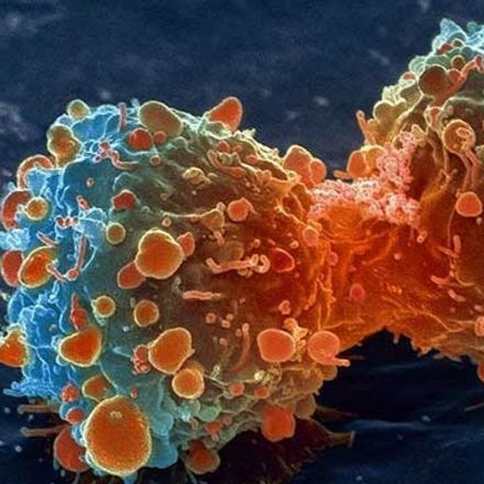 Terminal cancer patients in complete remission after one gene therapy treatment