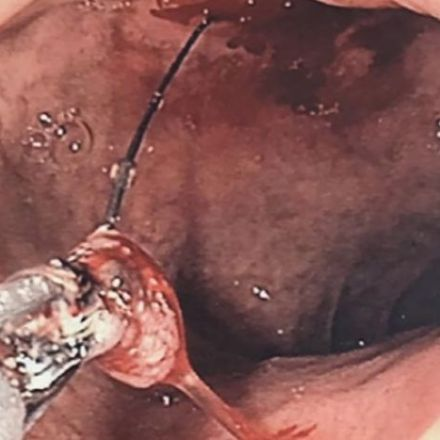 Doctors warn people to 'grill with caution' as man's pancreas injured by stray barbecue bristle