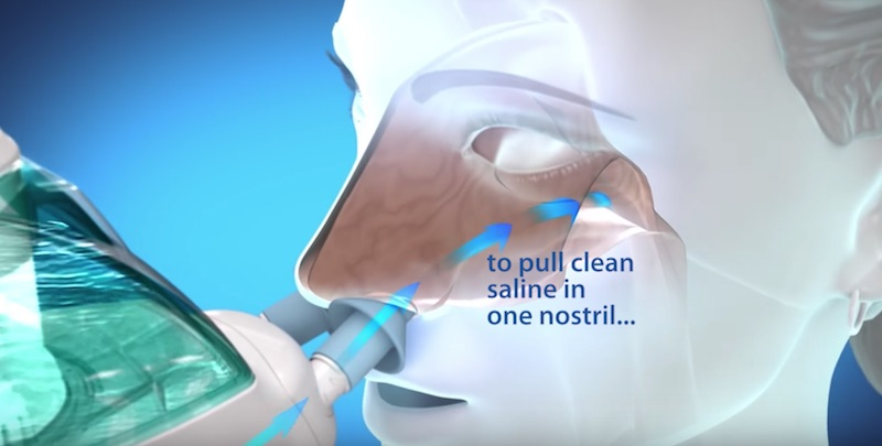 Saline Solution For Nose