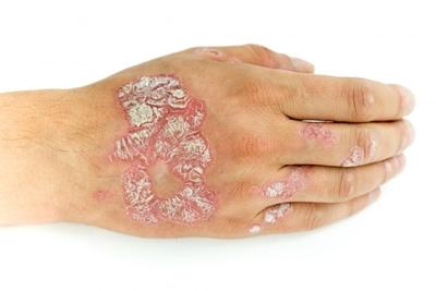 7 Cara Mengobati Psoriasis, Gejala, Penyebab dan Bahayanya