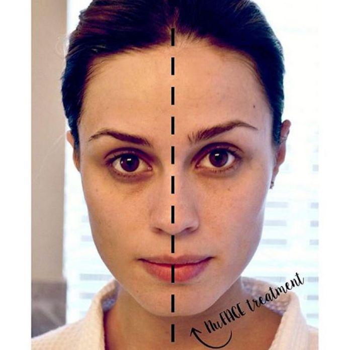 ClioMakeUp-microcurrent-facial-12