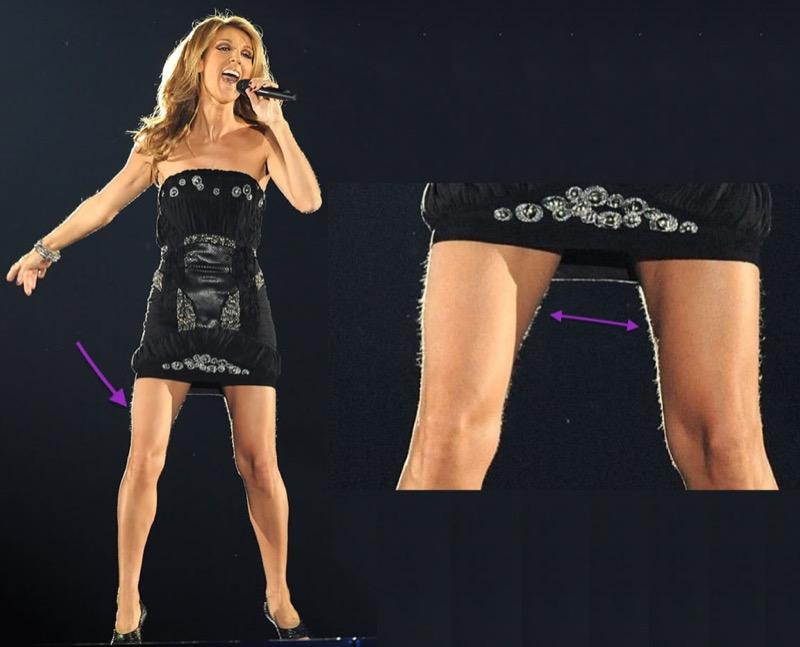ClioMakeUp-gambe-braccia-pelose-star-celebrity-peli-7