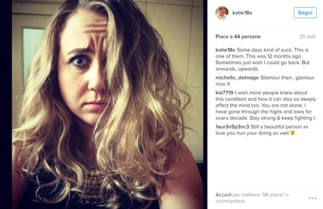 ClioMakeUp-Katie-Hale-Alopecia_10
