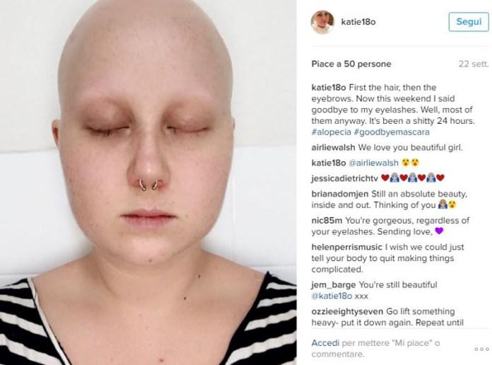 ClioMakeUp-Katie-Hale-Alopecia_2