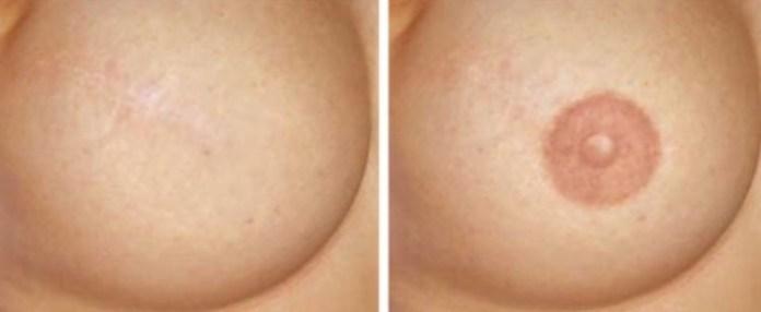 ClioMakeUp-dermopigmentazione-trucco-permanente-capezzolo-aoreola-mammaria