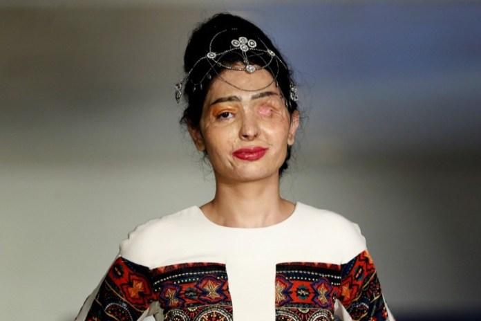 cliomakeup-acid-attack-reshma-quereshi-lucia-annibali-8
