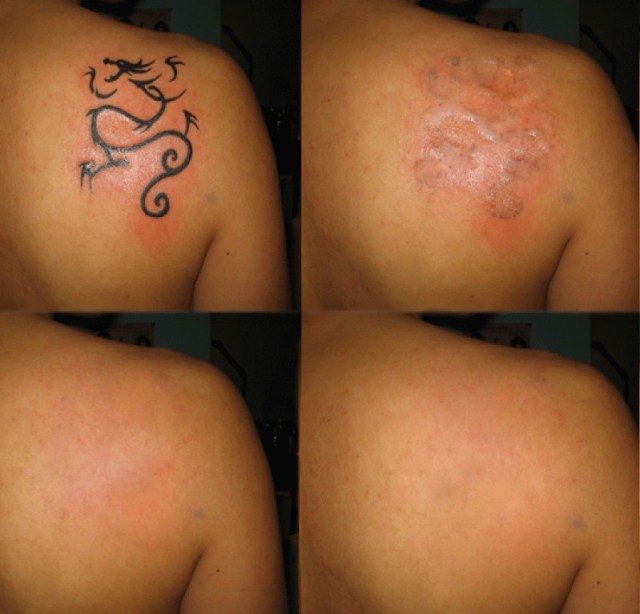 ClioMakeUp-Come-Togliere-Un-Tatuaggio_11