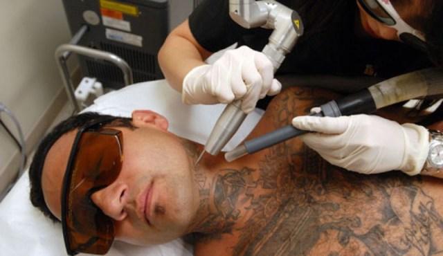 ClioMakeUp-Come-Togliere-Un-Tatuaggio_14
