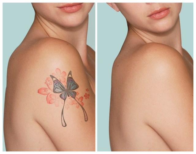 ClioMakeUp-Come-Togliere-Un-Tatuaggio_6