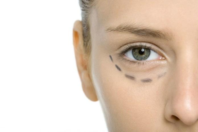 ClioMakeUp-borse-occhi-rimedi-consigli-copertina
