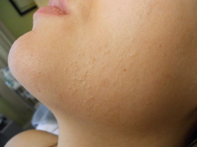 ClioMakeUp-brufoli-sottopelle-pustole-rimedi-come-fare-pelle-disidratata-secca-ludica-mista-6