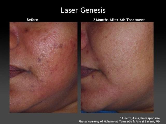 ClioMakeUp-acne-brufoli-imperfezioni-star-celebrity-prodotti-soluzioni-trattamenti