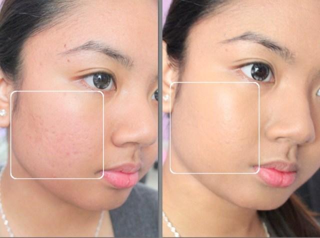 ClioMakeUp-cicatrici-da-acne-come-coprirle-trucchetti-segreti-step-11