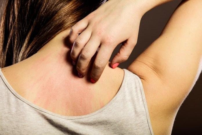 ClioMakeUp-dermatite-atopica-prodotti-cure-rimedi-trucco-beauty-pelle-13