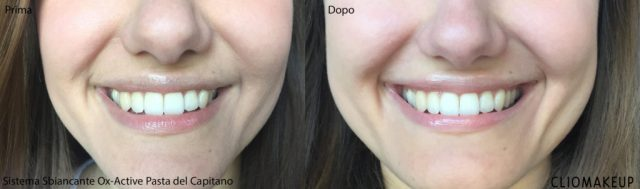 Cliomakeup-sbiancamento-denti-immediato (7)
