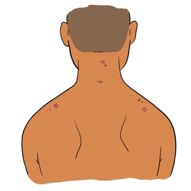 cliomakeup-tipi-di-brufoli-4-schiena