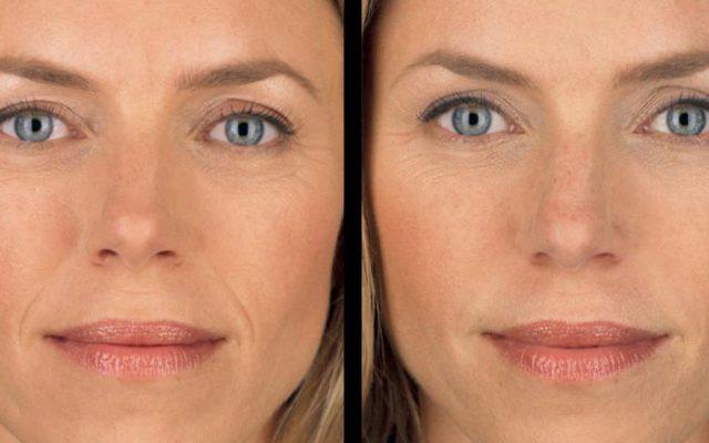 cliomakeup-chirurgia-estetica-non-invasiva-11