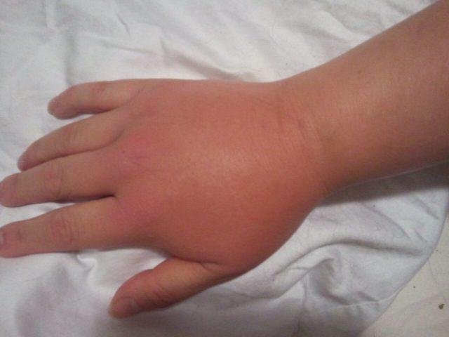 Mani gonfie? Un guida ai principali sintomi e rimedi