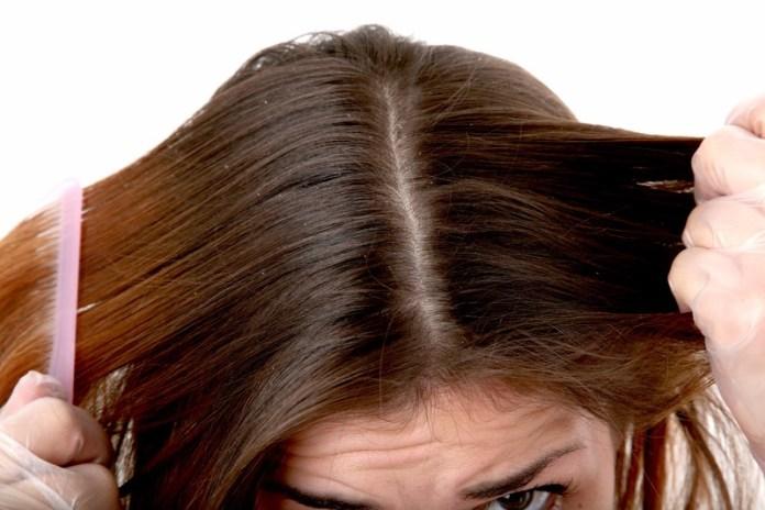 ClioMakeUp-forfora-capelli-grassa-secca-cause-rimedi-17