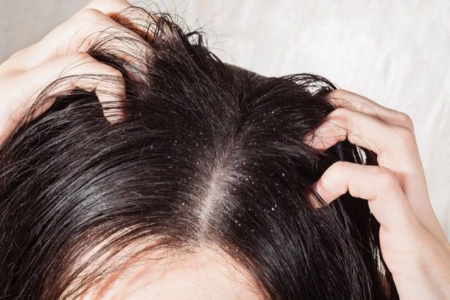 ClioMakeUp-forfora-capelli-grassa-secca-cause-rimedi-5