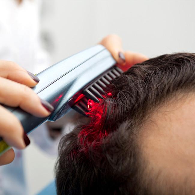cliomakeup-perdita-capelli-rimedi-8