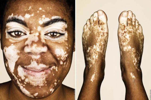 cliomakeup-brock-elbank-vitiligo-3