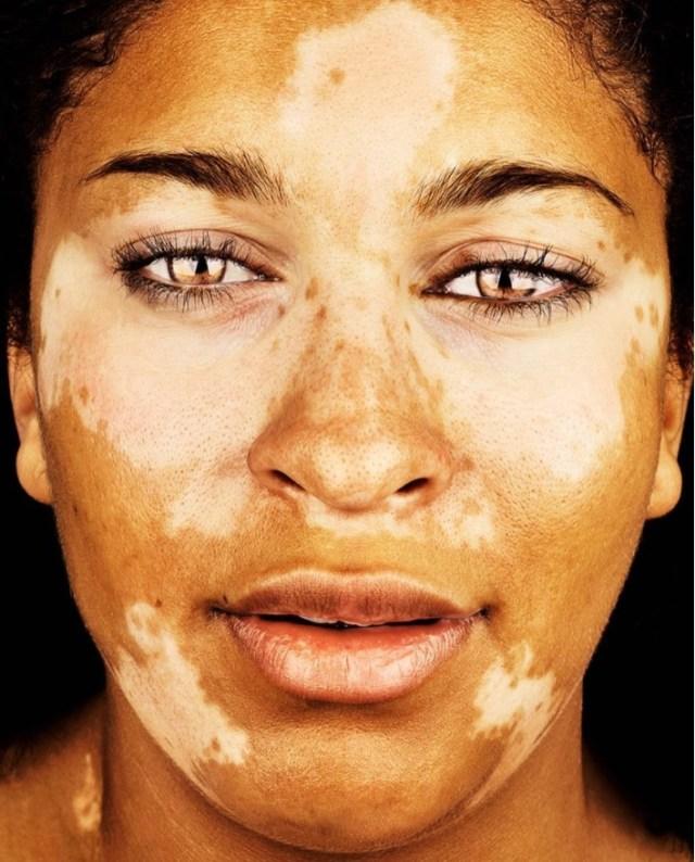 cliomakeup-brock-elbank-vitiligo-13