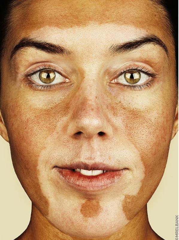 cliomakeup-brock-elbank-vitiligo-17