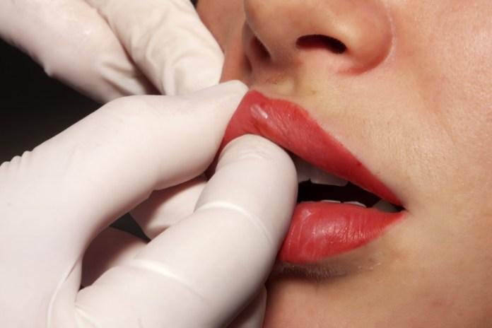 cliomakeup-chirurgia-estetica-trend-fossette-riduzione-capezzolo-labbra-3