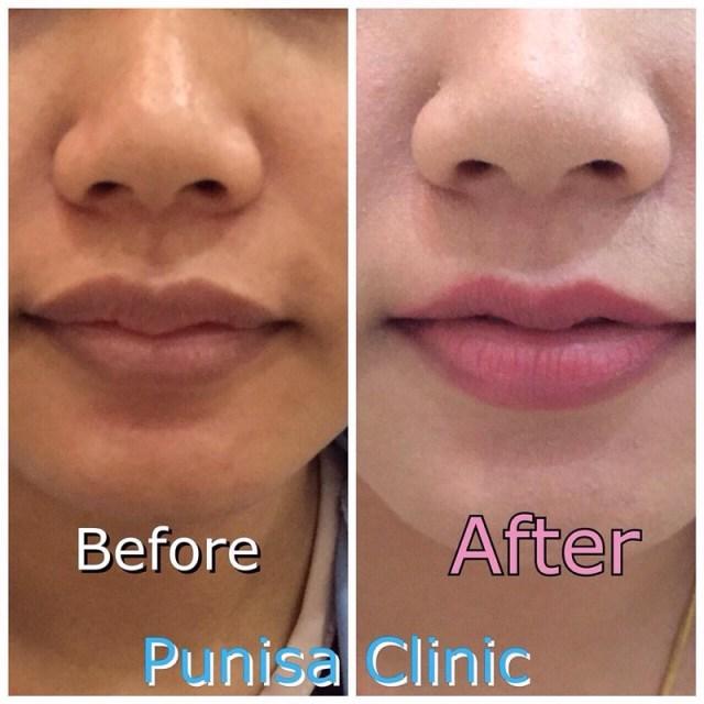 cliomakeup-chirurgia-estetica-trend-fossette-riduzione-capezzolo-labbra-7