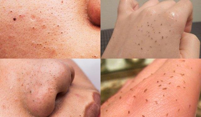 cliomakeup-skin-gritting-1-prima-dopo